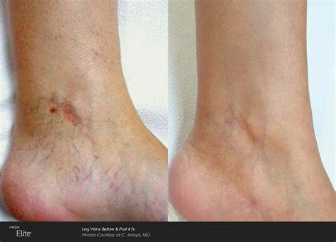 Laser Before and After – CLC BEAUTY RX