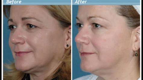 Anti Wrinkle Cream - Before and After - YouTube