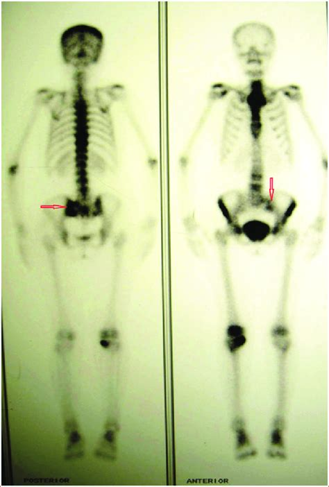 Anterior and posterior whole-body MDP bone scintigraphy