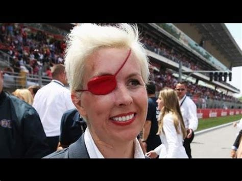 RIP F1 Driver Maria De Villota : Death 'Directly Linked To