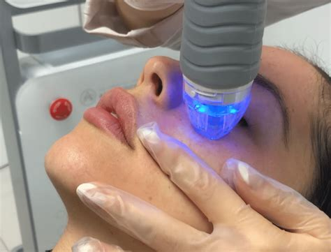 Healthy Skin With RF Microneedling In New York City
